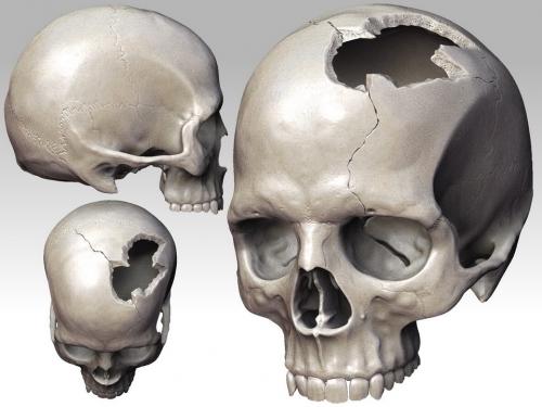 broken_skull.jpg
